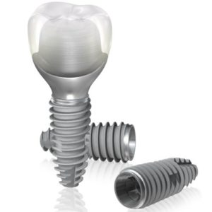 Dental implants systems