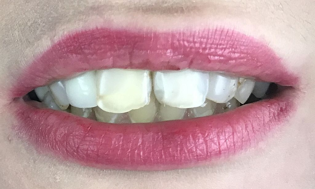 Use of porcelain veneers
