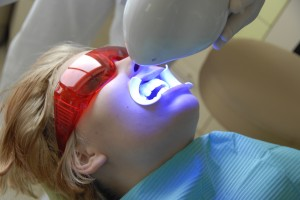 Teeth whitening 01