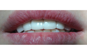 Porcelain veneers 02