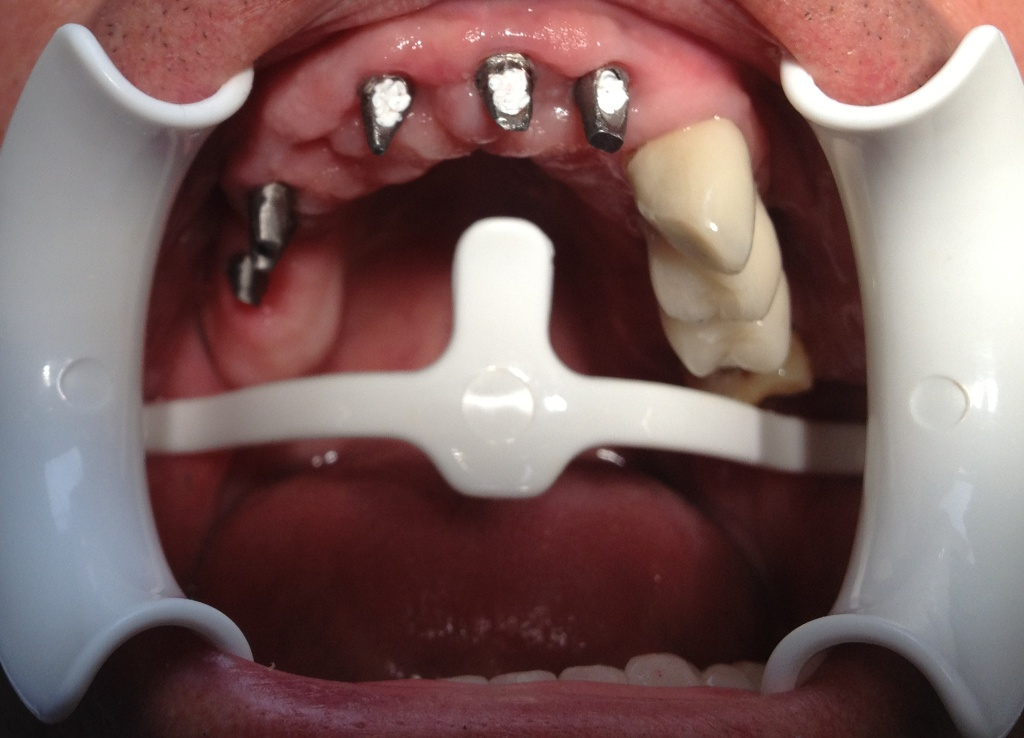 Fixed dental implants 01