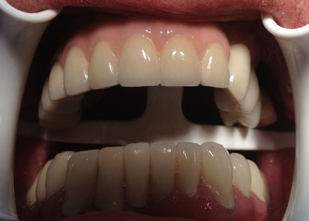 Fixed dental implants 02