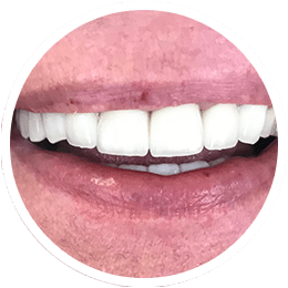 Upper jaw prosthetic reconstruction