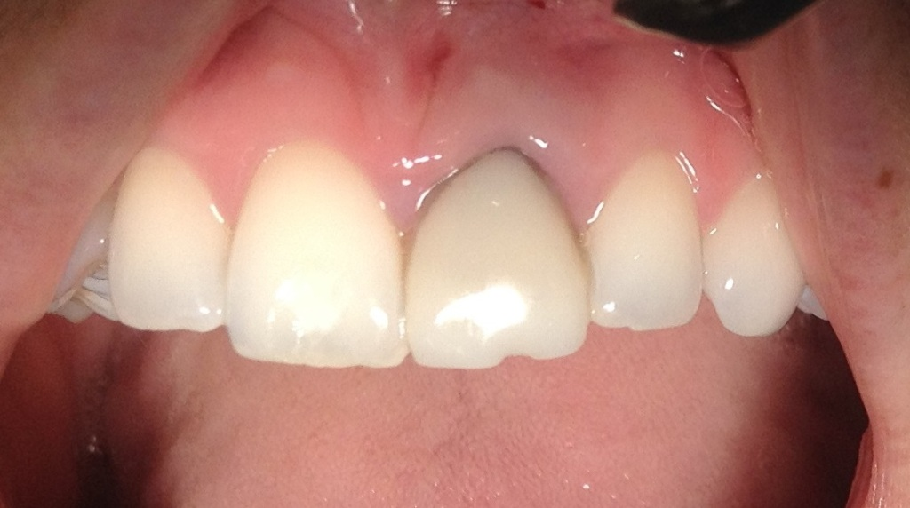 Implant of the upper one tooth