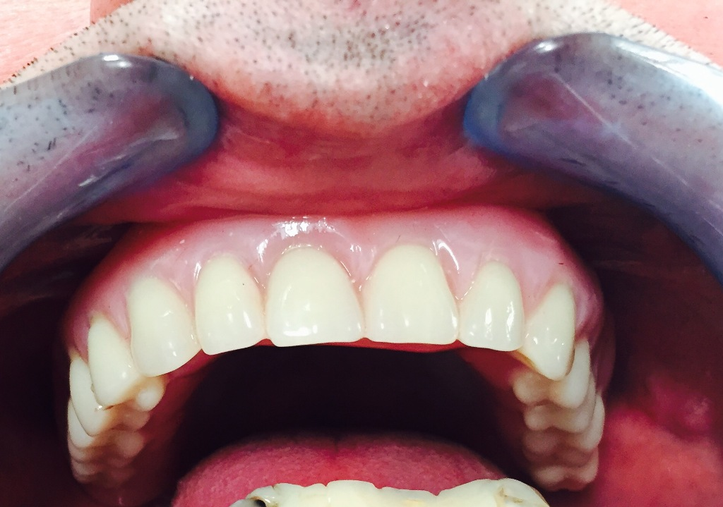 Anodontia – tratments using an implants.