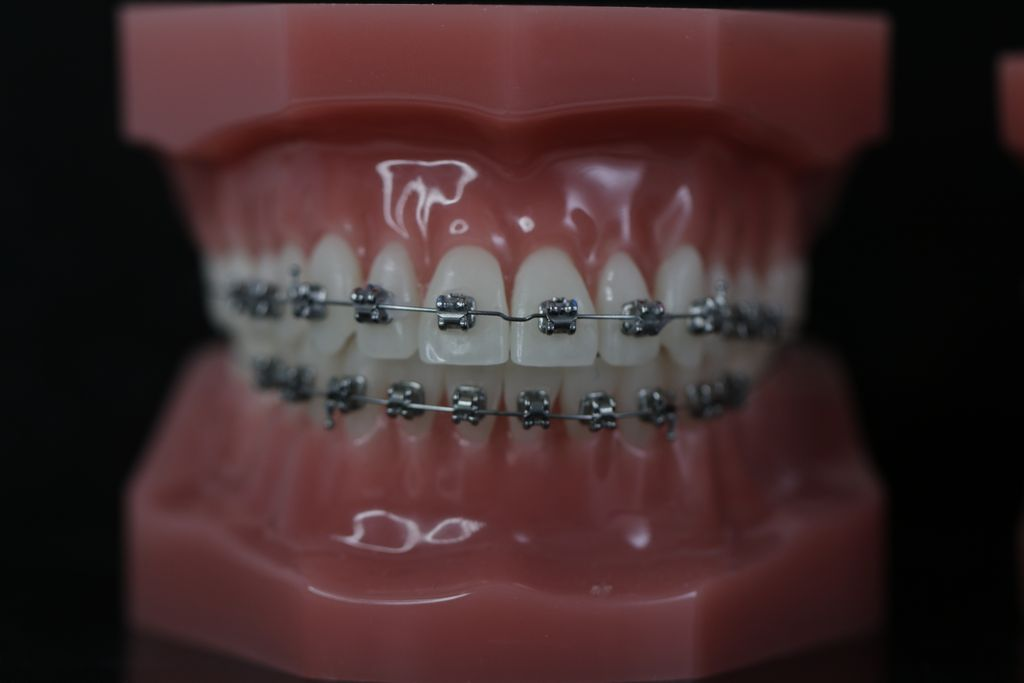 Treatment of malocclusion